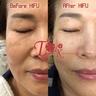 High Intensity Focused Ultrasound - Hifu (Lifting, Tone Up)