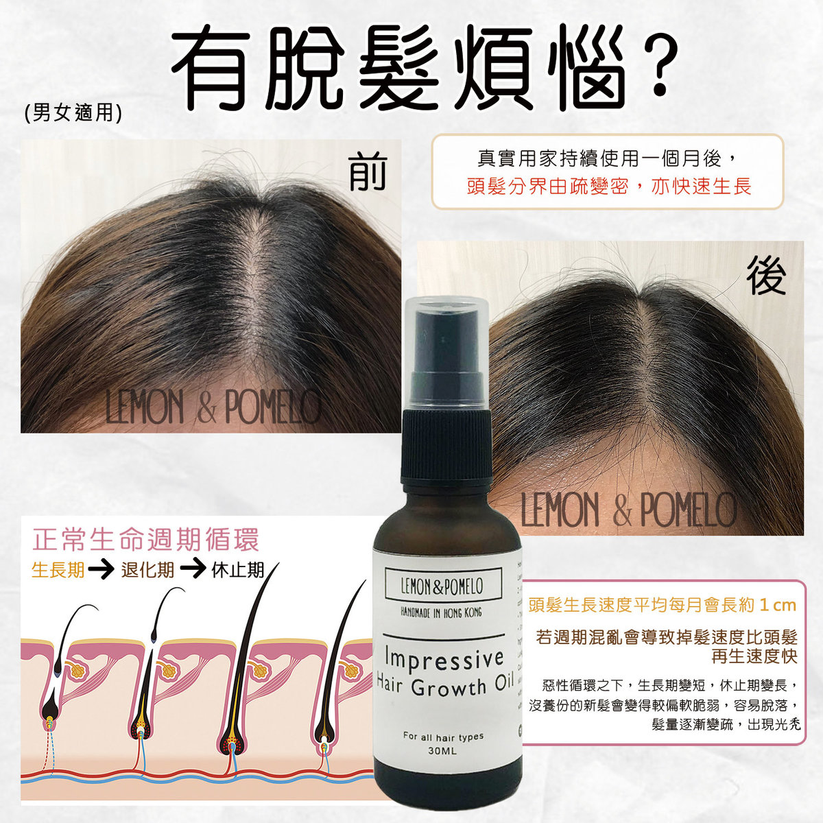 Hair Growth Oil 30ml